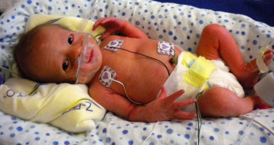 Premature baby in neonatal intensive care unit.